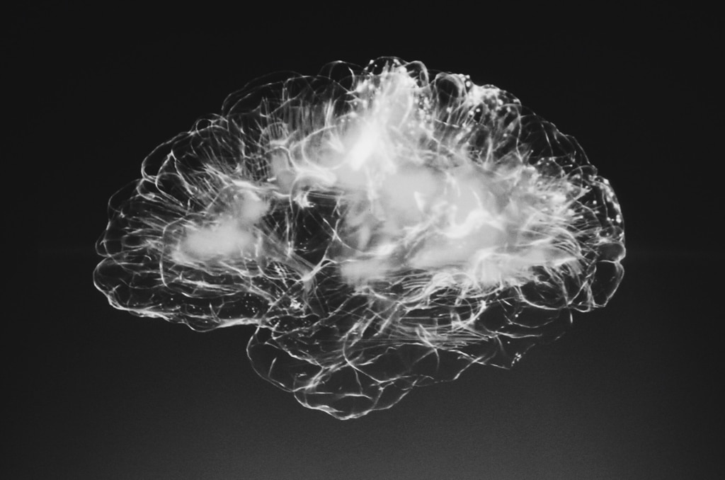 brain scan, benefits of psychedelic assisted therapy